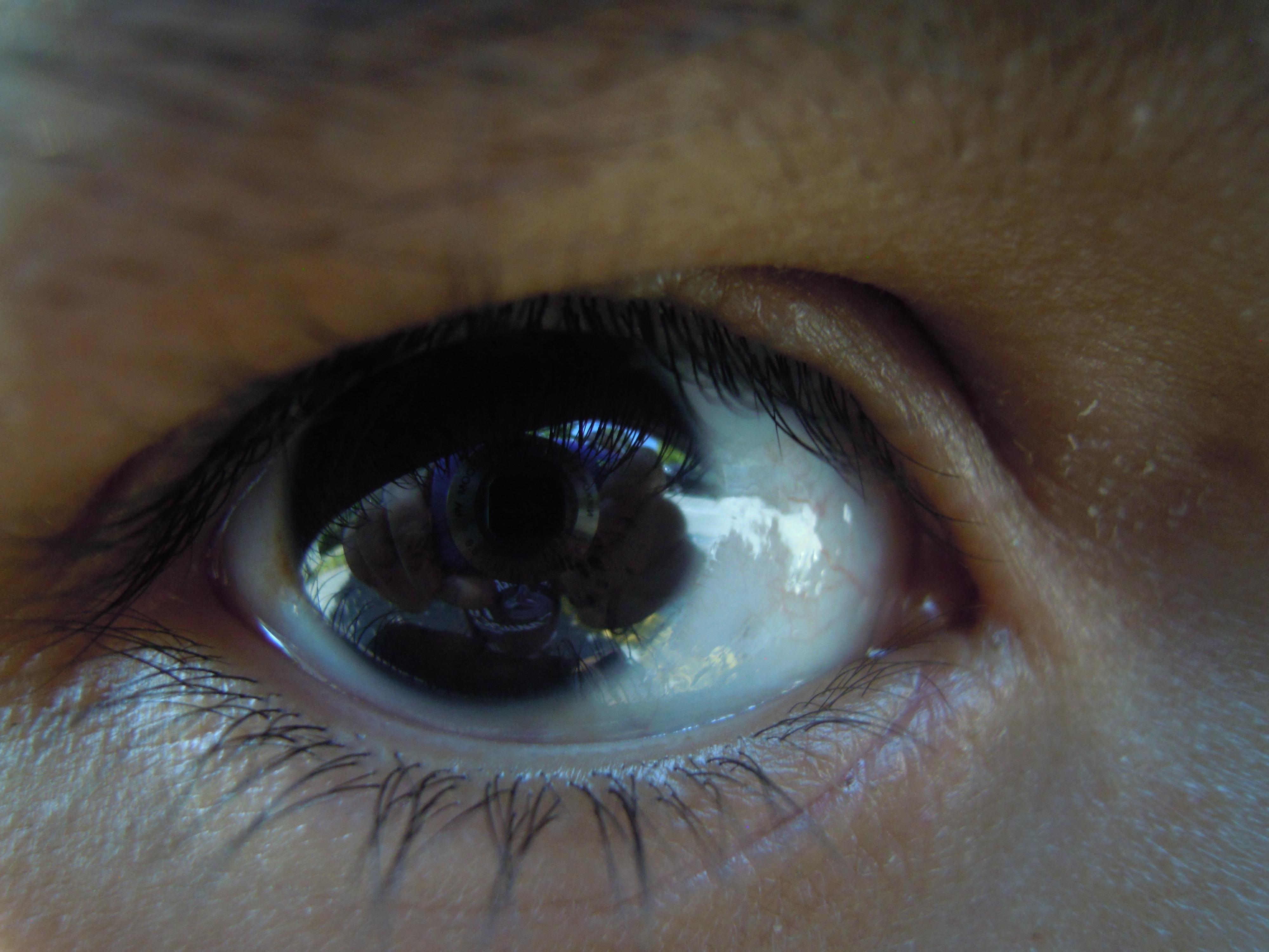 eye4aneye